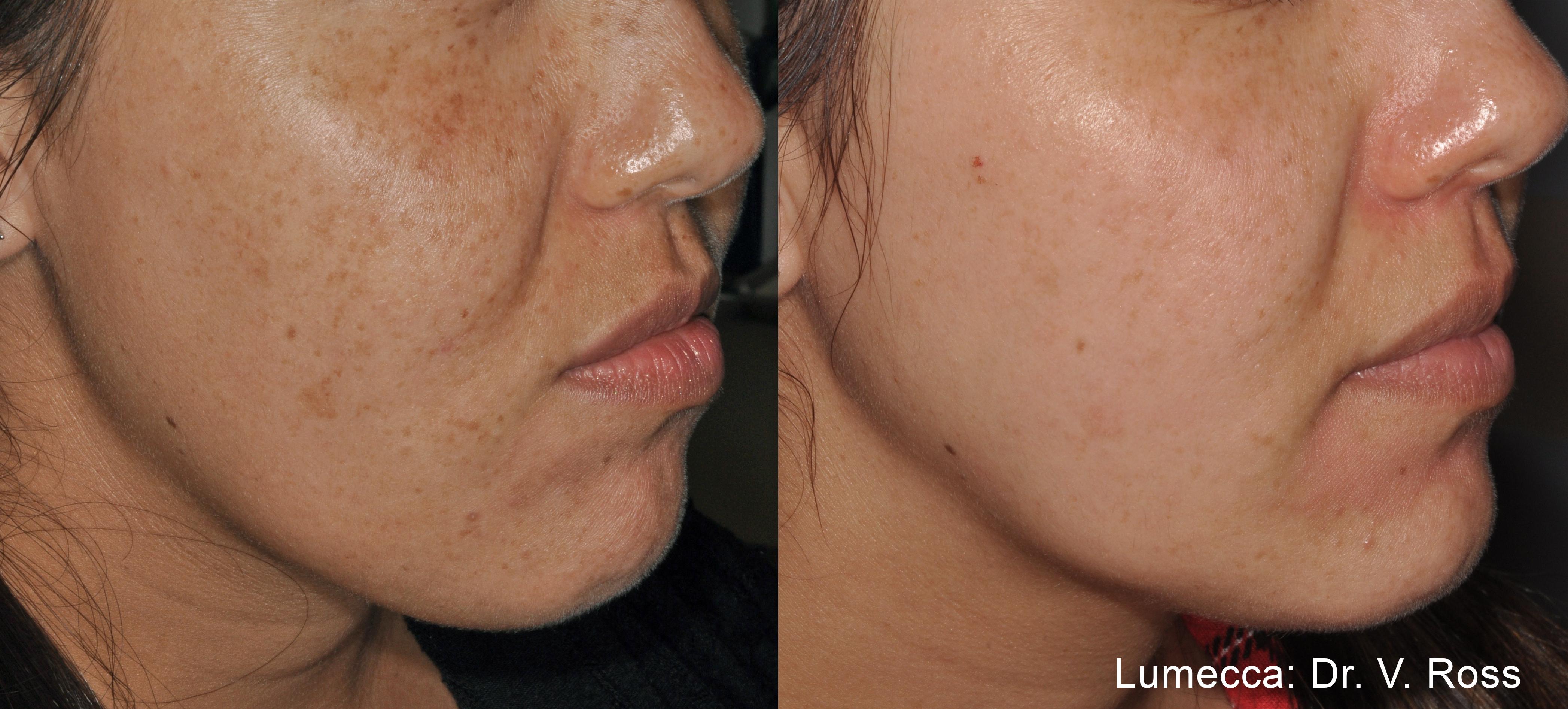 przed i po zabiegu usuwania przebarwień na twarzy
