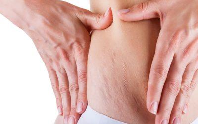 Karboksyterapia – zabieg, który działa cuda